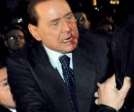 Silvio Berlusconi injured